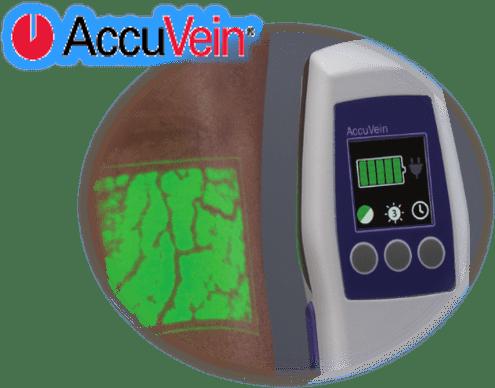 Accuvein laser vein treatment